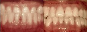 Underbite: Lower Front Teeth in Front of the Upper Teeth