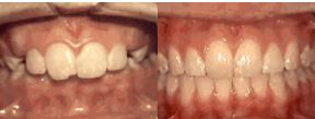 Overbite: Protruding Front Teeth