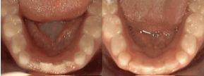 Non-braces Treatment