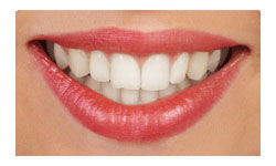 Invisible Clear Orthodontic Appliances